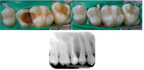 I vari passaggi per eliminare il mal di denti