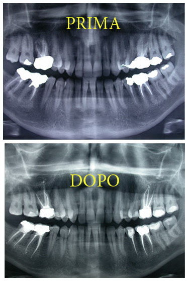 Mal di denti: cosa fare?Endodonzia prima e dopo