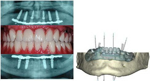 Implantologia indolore. Studio dentistico Resta Implantologia indolore Bari e Taranto. Dentista Resta impianti dentali