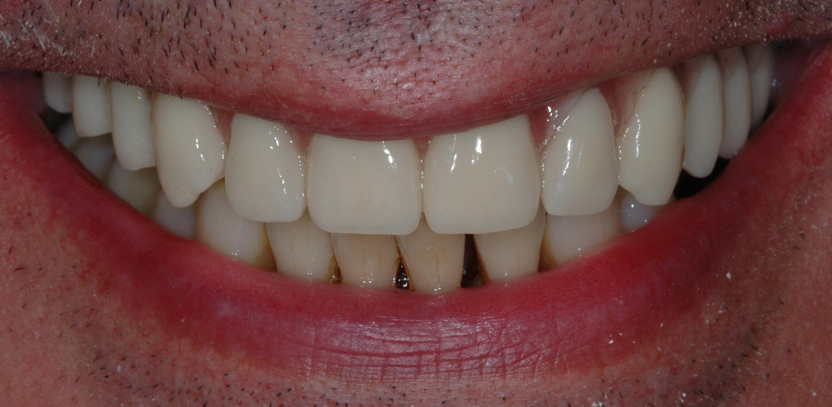 1 caso implantare (7)