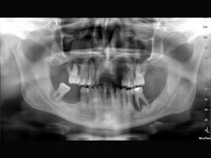 danni del fumo ai denti
