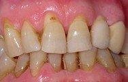 igiene orale. Erosioni da spazzolamento errato