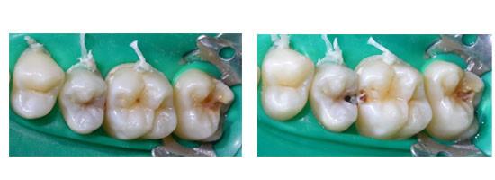 Carie pre e durante trattamento