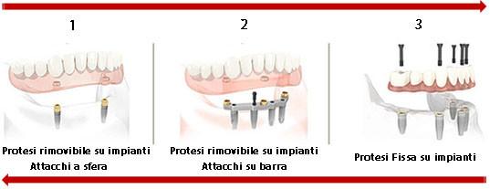 Varie tipi di protesi su impianti dentali