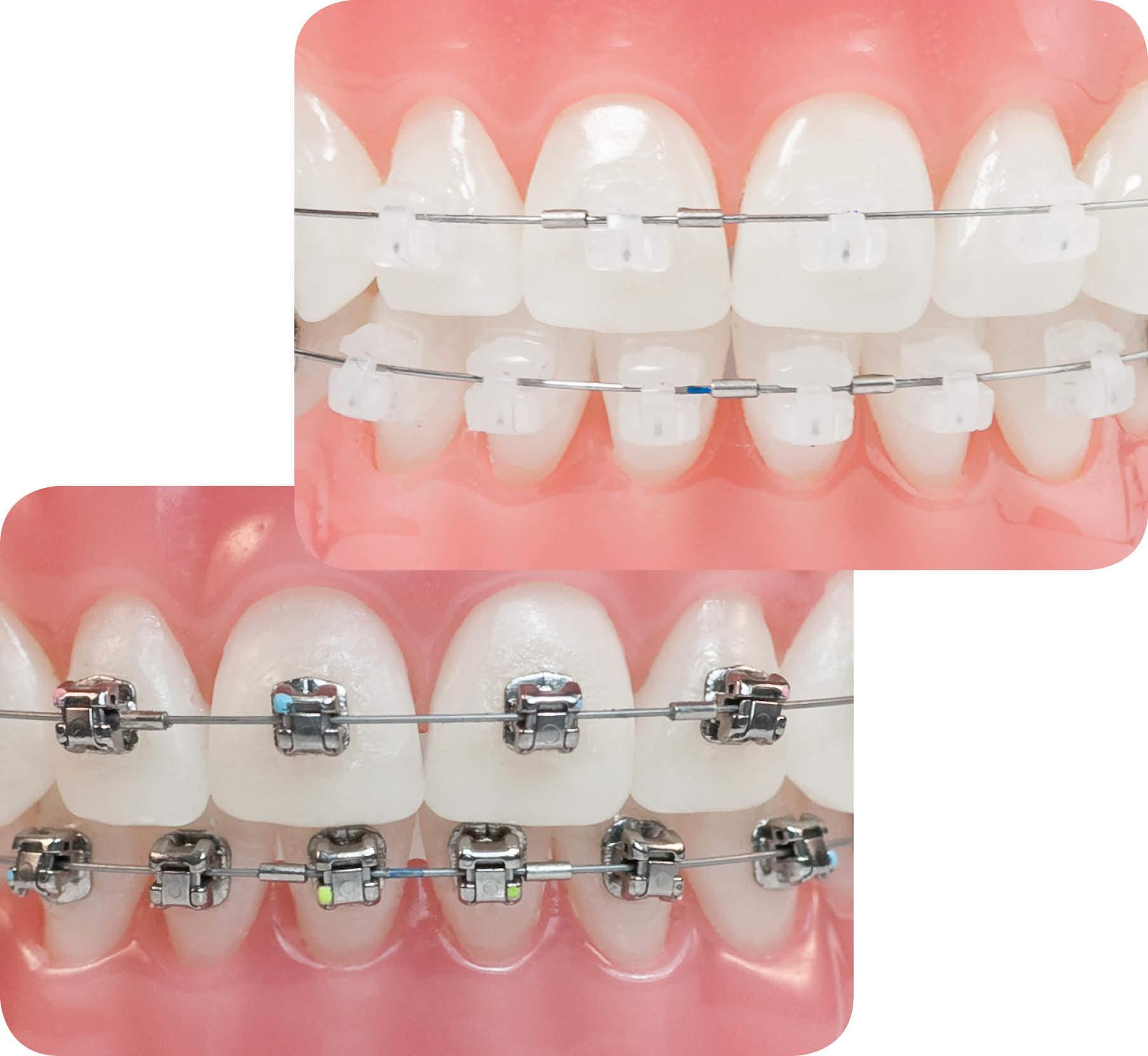 ortodonzia con stelline