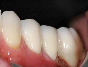 zirconio su impianto dentale