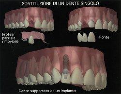 Implantologia_tradizionale_1
