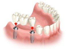 Implantologia_tradizionale_3