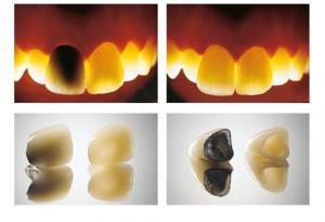 Protesi zirconia su impianto dentale