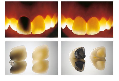 lava_zirconia_features_2_w500_2_0