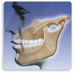 articolazione_mandibolare. dolori mandibolari. Studio Resta