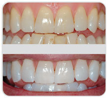 Sbiancamenti dei denti