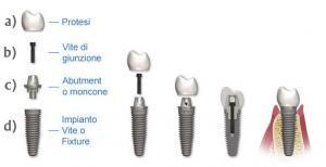 componenti impianto dentale