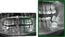 denti_del_giudizio_1