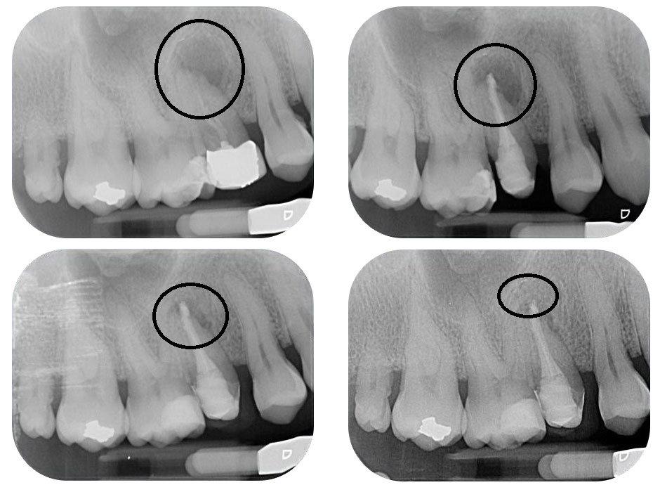 Mal di denti (devitalizzazioni)