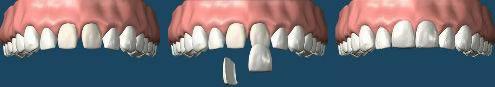 estetica_dentale_2