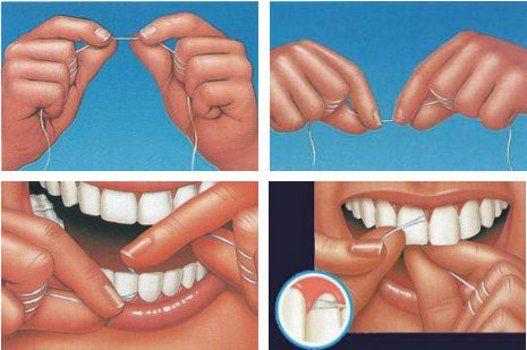 filo interdentale igiene orale