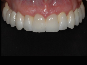 Toronto bridge in zirconia ceramica