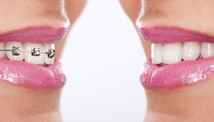 Dentista Bari Taranto Implantologia, Impianti dentali, Ortodonzia, Parodontologia studio Resta