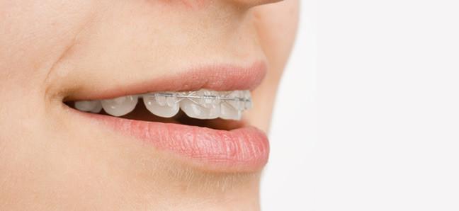 ortodonzia-mobile-studio resta- dentista