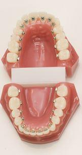 ortodonzia_linguale