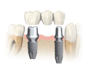 Ponte su impianto dentale