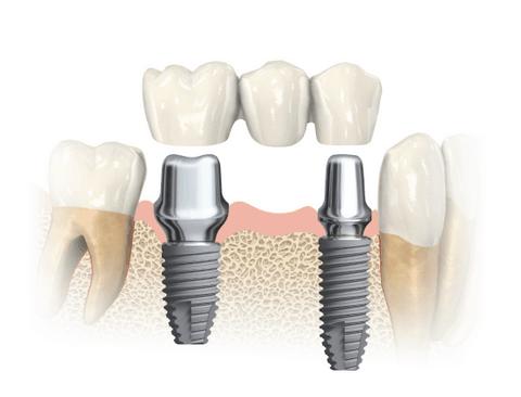 Impianto dentale tutto ciò che devi sapere dalla a alla z