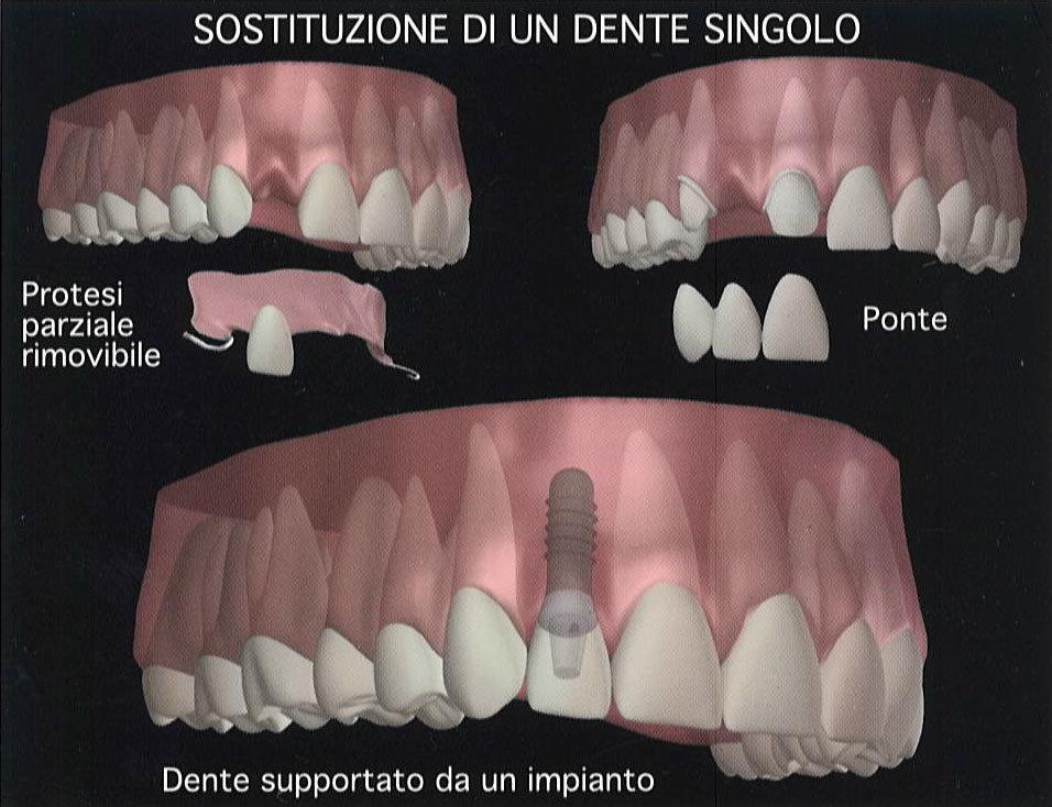 sostituzione-dente-singolo