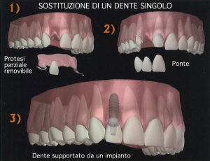 Protesi fissa su impianto dentale