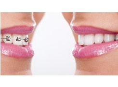 Ortodonzia-invisibile-slider