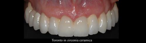 Costi impianti dentali dentista Bari Taranto