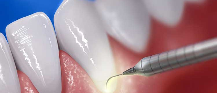 laser_periodontal_therapy_by_ivraie-d4efaib-750×321