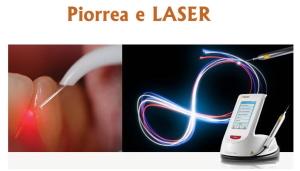 Cura piorrea con il laser dentale Bari