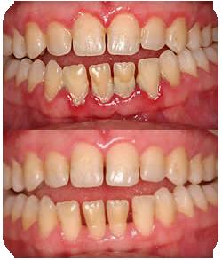 Igiene e parodontite