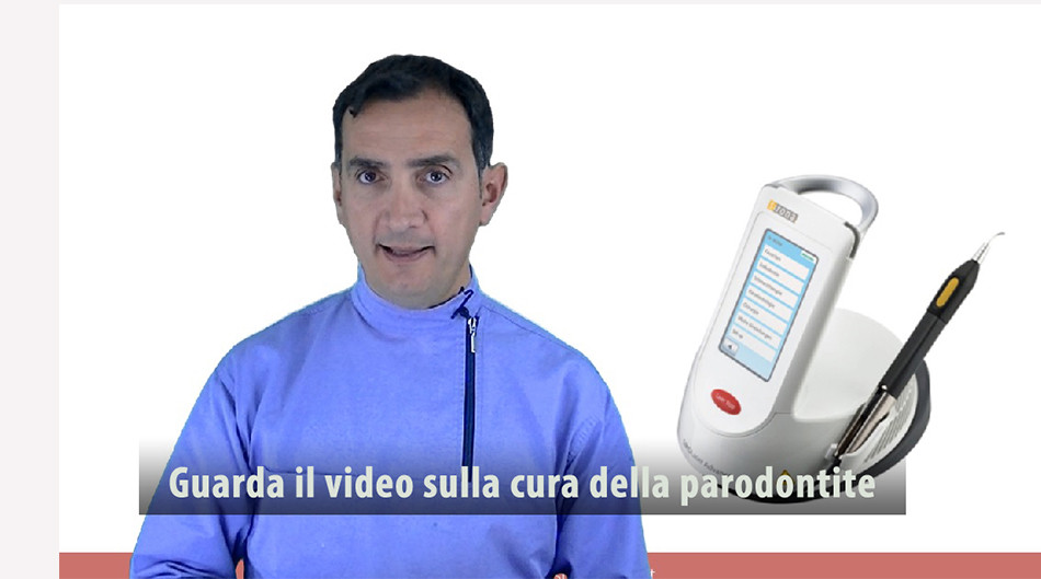 video cura implantologia