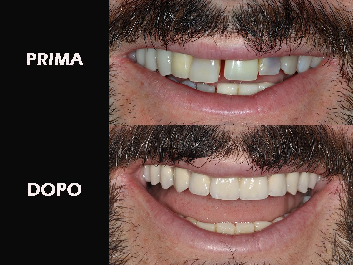 Mei-verticale-PRIMA-E-DOPO