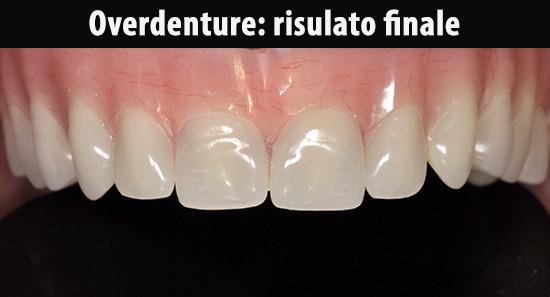Protesi-in-bocca-3