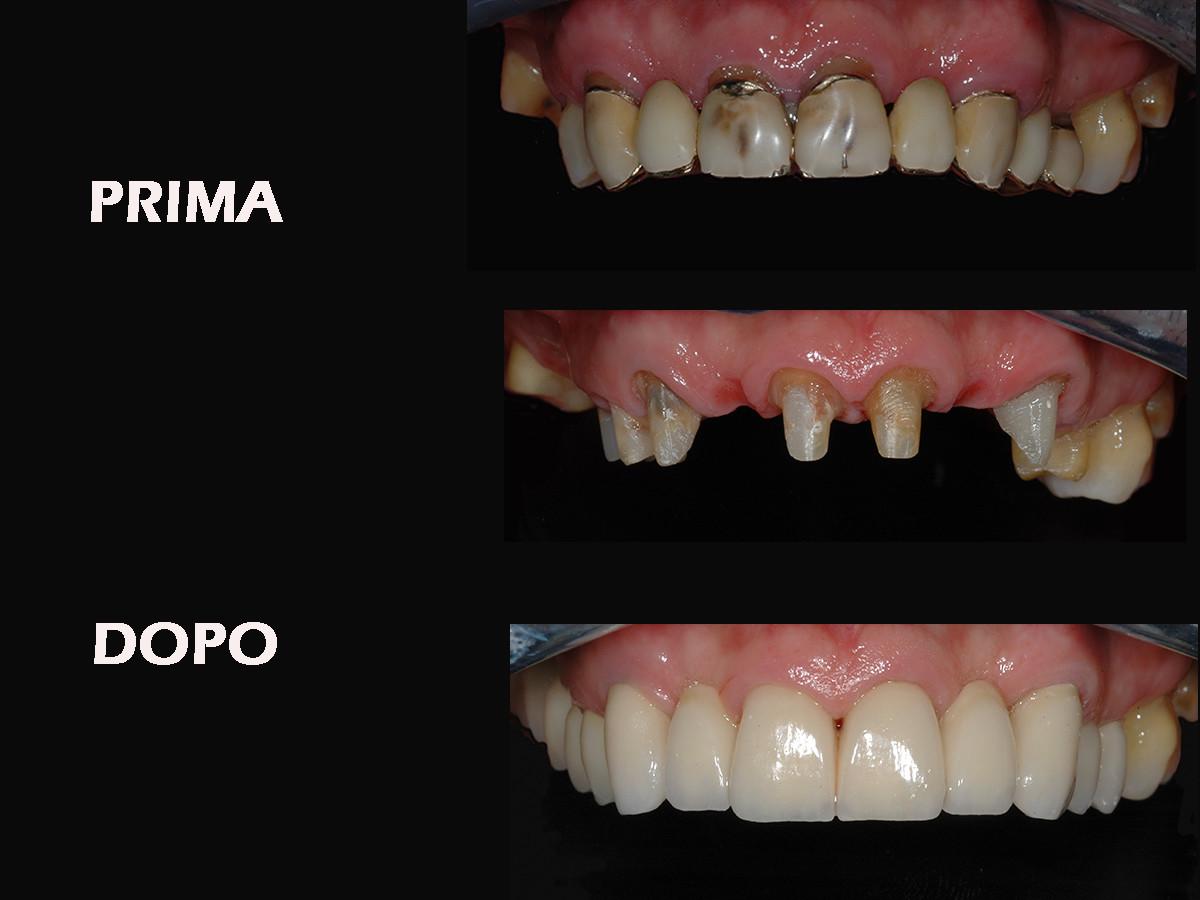 Silvestri-denti-naturali-Prima-e-dopo-verticale
