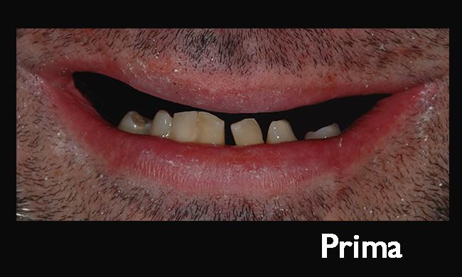 Solazzo-Prima1