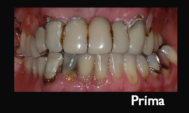 caso-implantare-clinico-7-prima