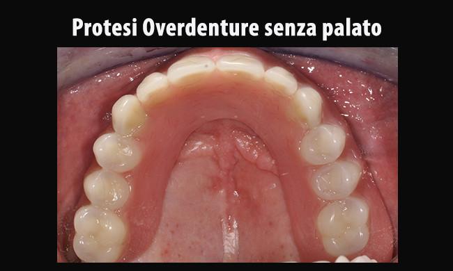protesi-in-bocca