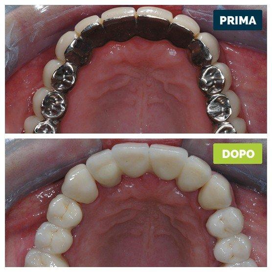studioresta-landing-implantologia-prima-dopo-caso-08
