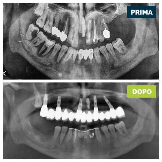 studioresta-landing-implantologia-prima-dopo-caso-11