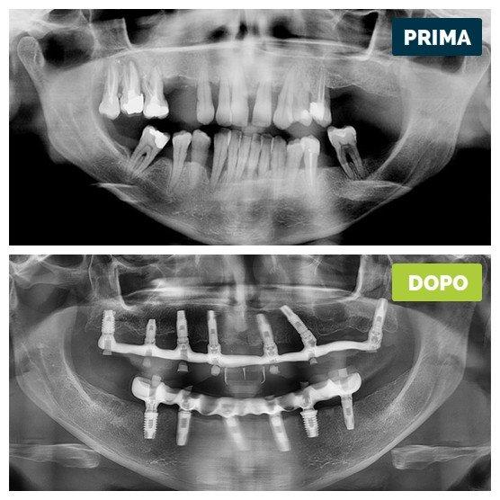 studioresta-landing-implantologia-prima-dopo-caso-14