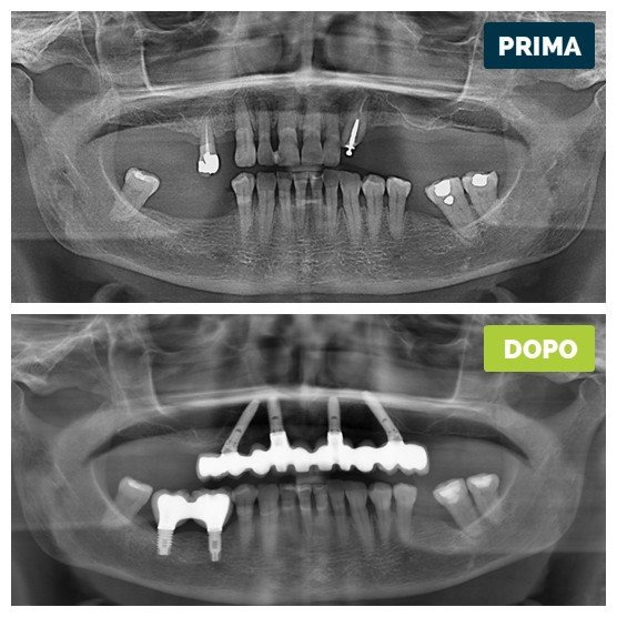 studioresta-landing-implantologia-prima-dopo-caso-16