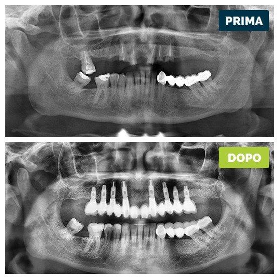studioresta-landing-implantologia-prima-dopo-caso-21
