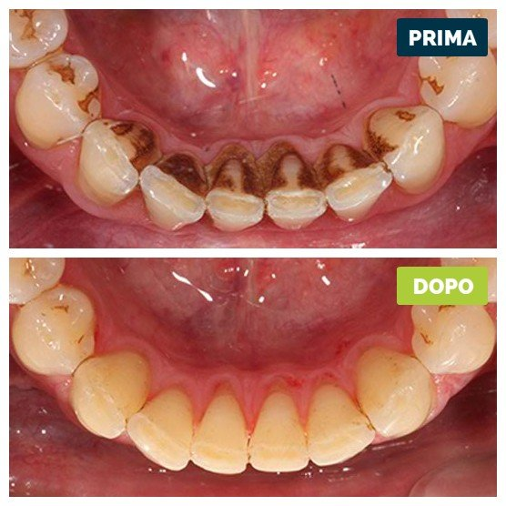 studioresta-landing-parodontite-prima-dopo-caso-01