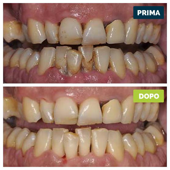 studioresta-landing-parodontite-prima-dopo-caso-02