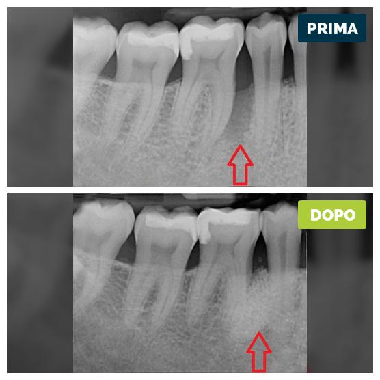 studioresta-landing-parodontite-prima-dopo-caso-03
