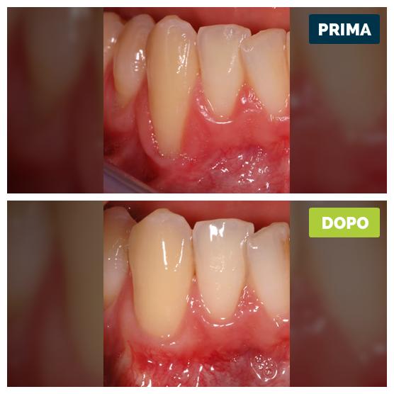 studioresta-landing-parodontite-prima-dopo-caso-05